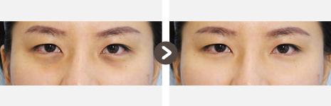 目の下の脂肪再配置(結膜)