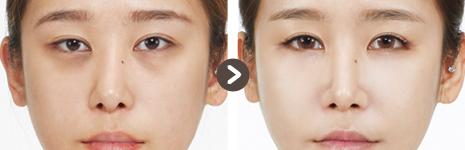 目の整形(目尻切開) + 目の下の脂肪再配置 + 顔の全体に脂肪移植