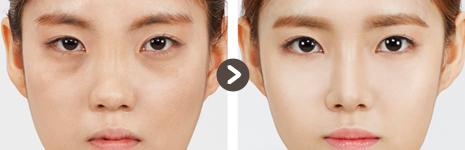 目の整形 + 顔(脂肪移植) + 豊胸術(ラウンド)