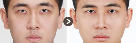 目の整形(切開を目つき矯正 + 目頭切開) + 鼻フィラー