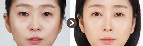 目頭切開 + 目の下の脂肪再配置 + 鼻整形 + 顔全体に脂肪移植